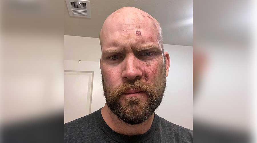 Photo of Salt Lake man beaten, called fag as he walked past a gay bar after a movie